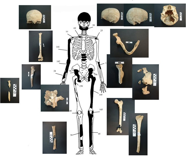 Bones from the skeleton of a woman aged 60+ at death found in and around the cist grave in the Amphipolis tomb