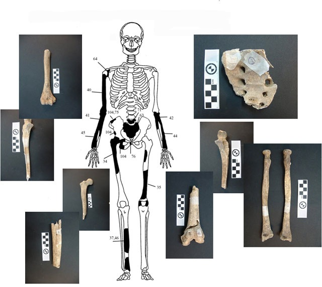 Figure 5. Identified bones from the skeleton of the elder male (mid-forties)