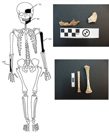 Figure 9. Identified bones from the skeleton of the infant child