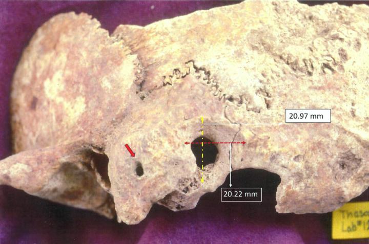 Skull Greek Archaeological Found
